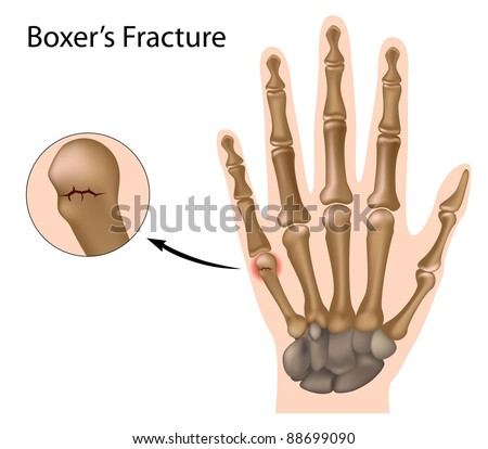 Boxer's fracture, the most common finger fracture - stock photo