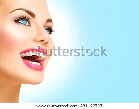 Braces. Beautiful Woman smile close up. Healthy Smile. Closeup Ceramic Braces on Teeth. Beautiful Female Smile with Braces. Orthodontic Treatment. Dental care Concept. Beautiful Lips and Teeth - stock photo