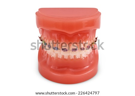 Braces model isolated on white. (with clipping path) - stock photo