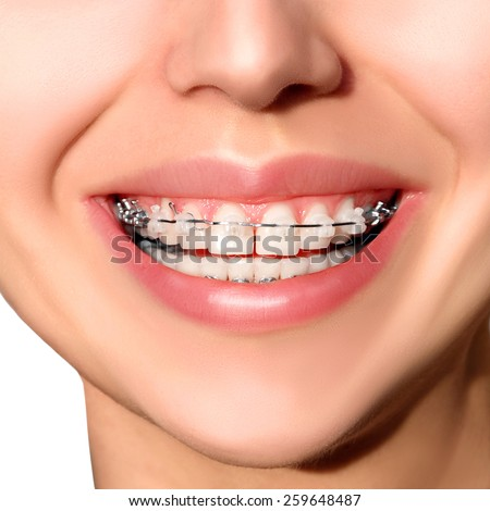 Braces on Teeth. Braces Smile. Orthodontic Treatment. Closeup Smiling Face with Braces. - stock photo