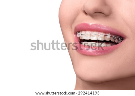 Braces on Teeth. Dental Braces Smile. Orthodontic Treatment. Closeup Smiling Face with Braces. Isolated on White Background.  - stock photo