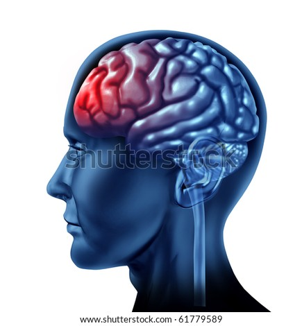 brain head ache migrain throbbing pain lobes frontal psycologist therapy - stock photo