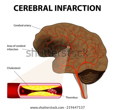 brain stroke. Cerebral infarction. the obstruction is caused by a blood clot that forms in a cerebral artery, at an atheromatous plaque. - stock photo