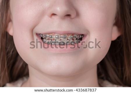 Broad smile girl with metal braces. Closeup. - stock photo