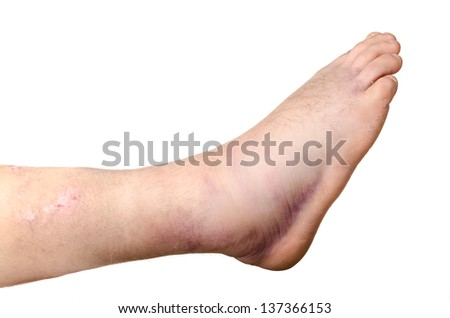 Broken ankle of a person isolated on white background - stock photo