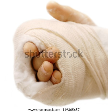 broken arm bone in a cast and bandages over white background isolated - stock photo