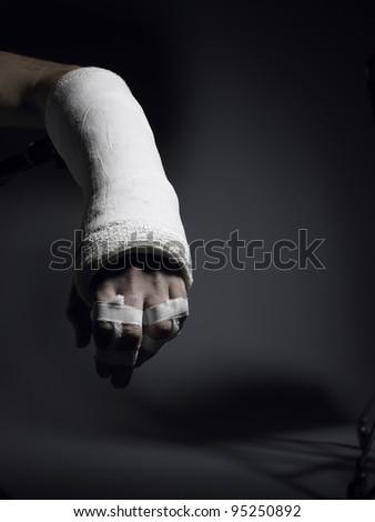 Broken arm in cast - stock photo