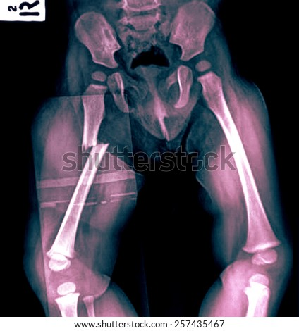 broken human thigh x-rays image ,Right leg fracture - stock photo