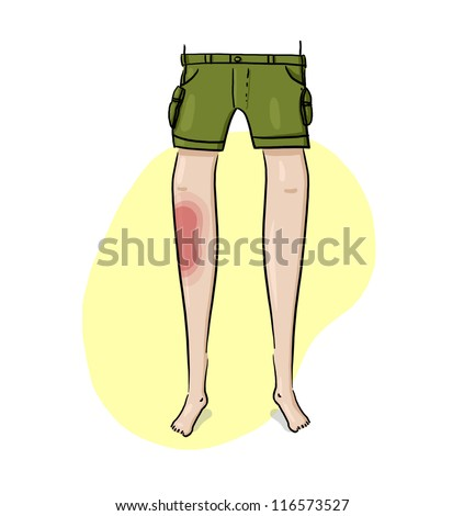 Bruised Leg Illustration; Injured leg drawing; Front View Of A Bruised Light Skin Leg Illustration - stock photo