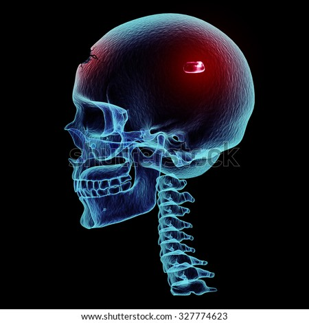 Bullet inside a skull x-ray view, 3D render art and illustration. - stock photo