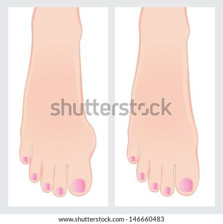 Bunion before and after operation.  - stock photo