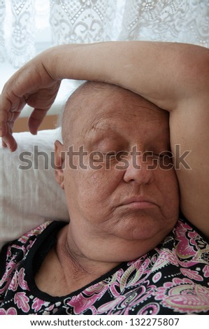 cancer (bald) woman resting - stock photo