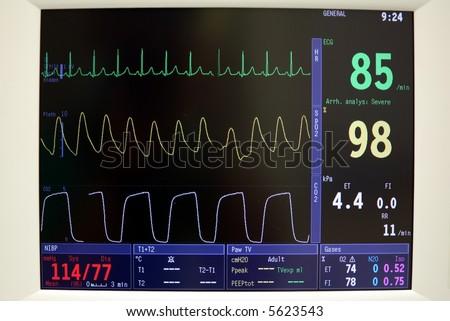 cardiac monitor - stock photo