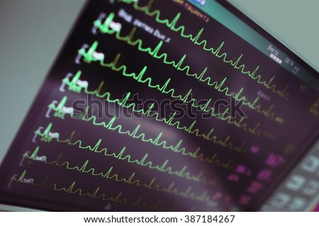 Cardiac monitoring in intensive care. - stock photo