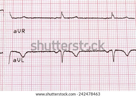 Cardiogram on paper - stock photo