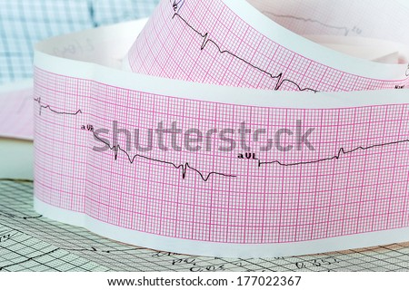 Cardiogram on the pink grid. The concept for strokes and heart attacks  - stock photo