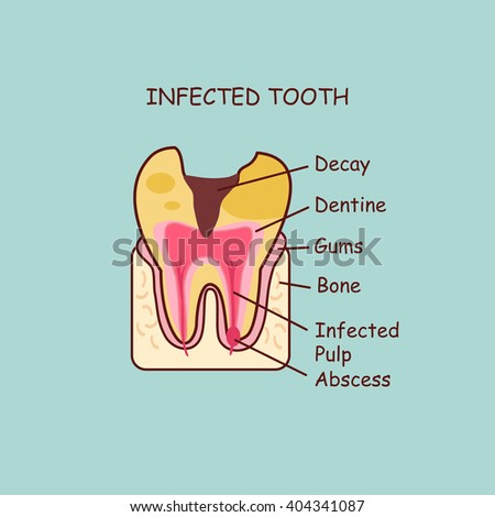 cartoon dental anatomy infected tooth ,  great for health dental care concept - stock photo