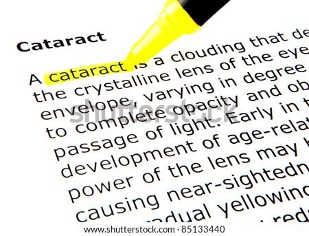 Cataract - stock photo