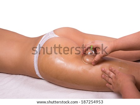 Caucasian female laying and get a cupping therapy - stock photo