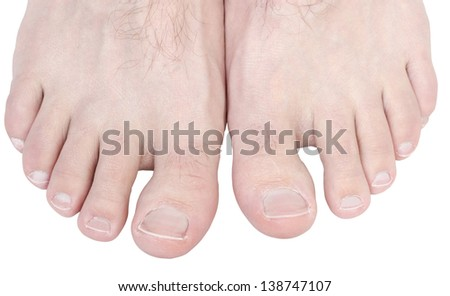 Caucasian male toes isolated on white background. - stock photo