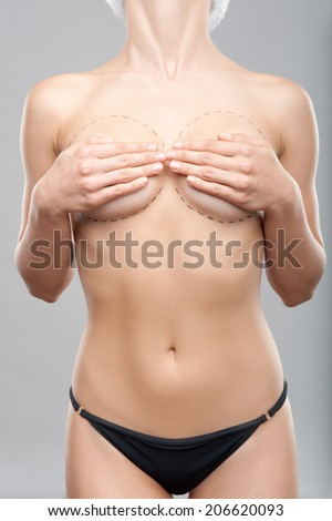 Caucasian woman's abdomen marked with lines for abdominal cosmetic surgery. Plastic surgey concept, isolated on grey - stock photo