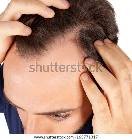 Caucasian young man controls hair loss - stock photo