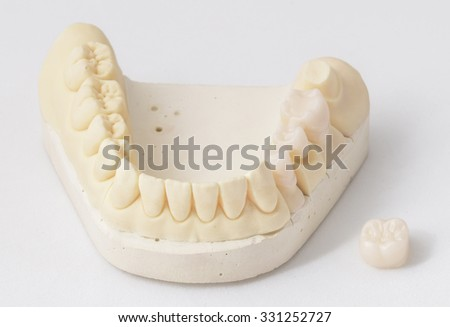 ceramic crowns in dental laboratory - stock photo