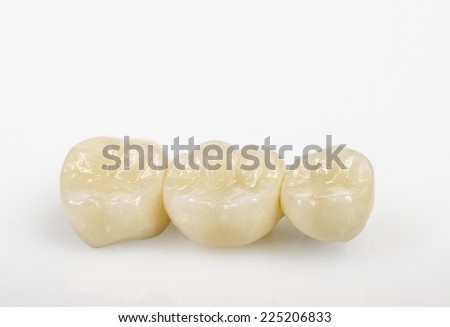 ceramic molars, relief - stock photo