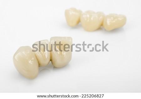 ceramics, dental technology - stock photo
