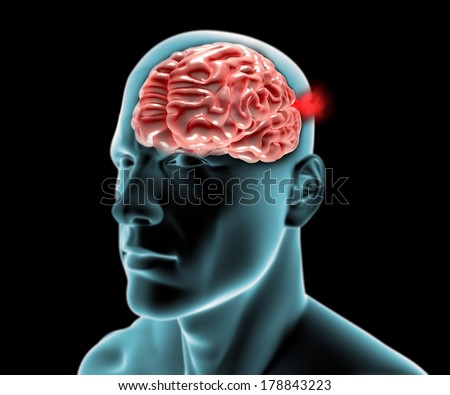 Cerebral aneurysm, brain head  - stock photo