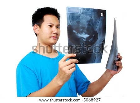 Checking the x-ray film - stock photo