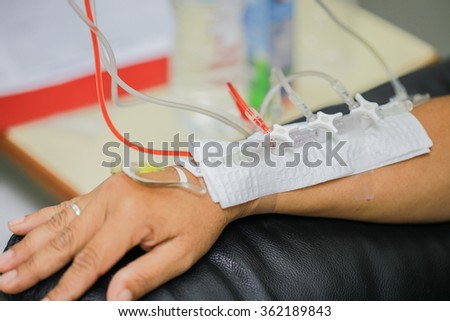 Chemotherapy to patient. - stock photo