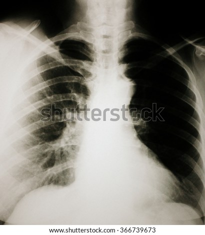 Chest and lungs Xray photo - stock photo