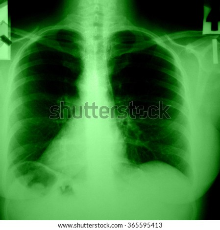 Chest and lungs Xray (X-ray) photo - stock photo