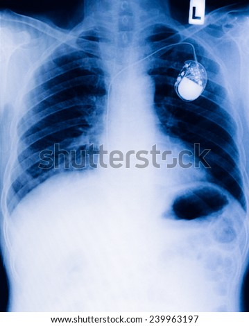 chest with the pacemaker on x-ray film - stock photo
