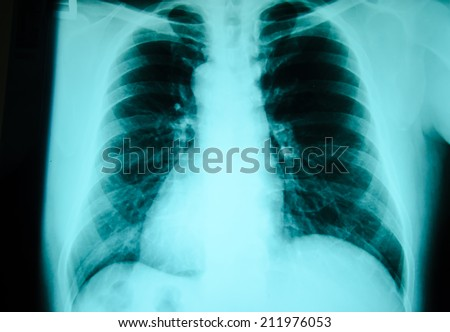 chest x-ray examination for diagnosis - stock photo