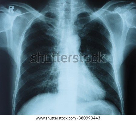 Chest x-ray image.Medical concept. - stock photo