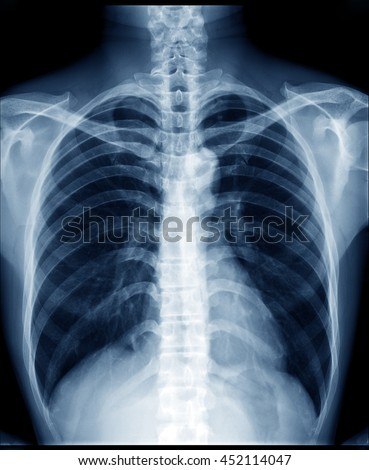 Chest x-ray of normal healthy man show lung, heart, spine, clavicle, diaphragm  - stock photo