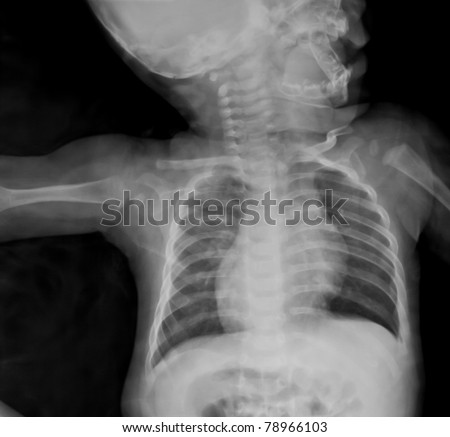 Chest x-ray of young boy. - stock photo