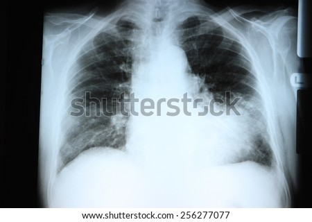 Chest X-ray showing a large infiltrate in the lingular segment of the left lung. Pneumonia. - stock photo