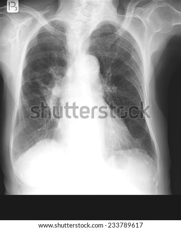 Chest x-rays durring lungs Tuberculosis also called as MTB or TB  - stock photo