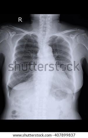 chest xray  - stock photo