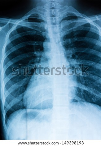 Chest xray scan - stock photo
