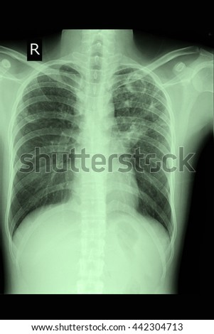 chest xray : show lung cancer : CA lung  - stock photo