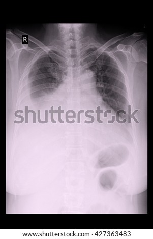 chest xray show pleural effusion and infiltration both lung - stock photo