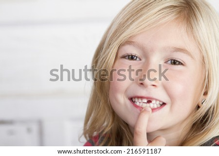 Child missing front tooth pointing at it with her finger - stock photo