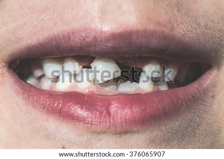 Child shows missing teeth. Child face - stock photo