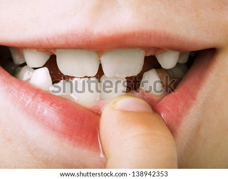 Child shows tooth. Close up studio shot. - stock photo