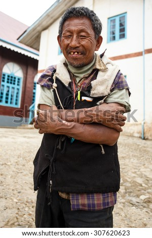 CHIN STATE, MYANMAR - JUNE 18 2015: Local man with bad teeth in the recently opened for tourists Chin State Mountainous Region, Myanmar (Burma) - stock photo