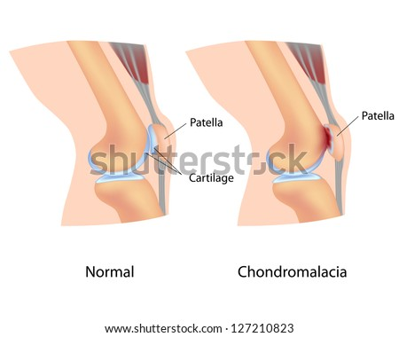 Chondromalacia - stock photo